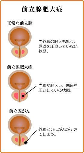 前立腺 肥大 症 症状