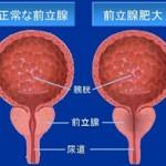 前立腺肥大症高温度治療